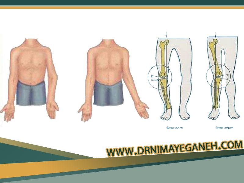 علت تغییر شکل استخوان و مفصل