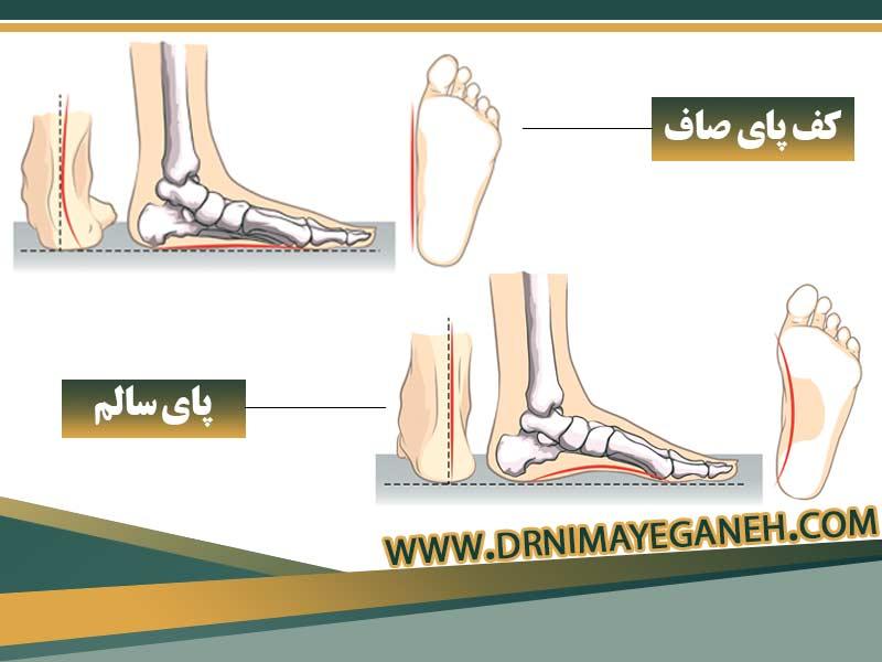 صافی کف پا و درمان آن
