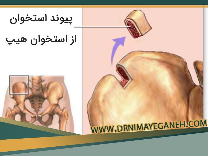 پیوند استخوان و کاربردهای آن