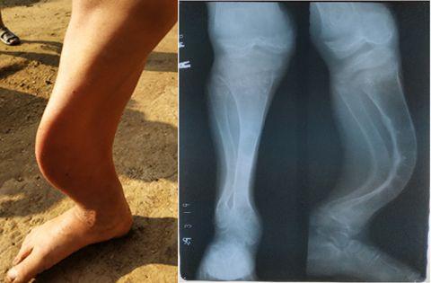 علت-نرمی-استخوان
