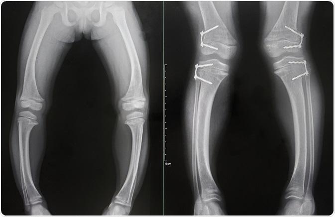 نرمی-استخوان